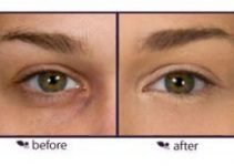 How to Apply Under Eye Concealers - Before ApplyingUnder Eye Concealer and After
