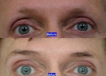 Eyebrow Loss – Cure and Treatment of Eyebrows Before and After