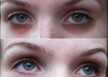 How to Cure Dark under Eye Circles – Laser Treatment for Dark Circles under Eyes