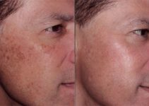How to Get Rid of Dark Circles under Eyes – Laser Resurfacing before and AfterTreatments