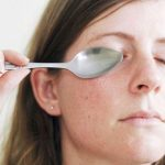 How to Get Rid of Dark Circles under Eyes - Cold Spoon