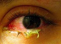 Bacterial Pink eye – Causes, Symptoms, Treatment and Prevention
