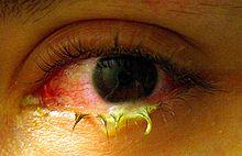 Fake Pink Eye Www Imagenesmy Com