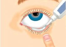 Eye Drops for Pink Eye – Use, Side Effects, Antibiotic, Over the Counter and Ointments for Conjunctivitis