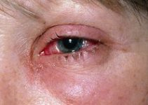 Viral Pink Eye – Causes, Symptoms, Cures, Treatments, Prevention Diagnosis of Viral Conjunctivitis