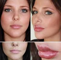 Lip Plumper Before And After 2