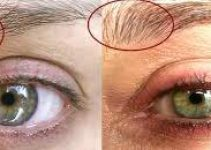 Eyebrow Growth Serum Before and After Photo