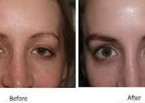Eyebrow Implants Before and After