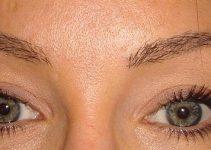 Eyebrow Restoration - Restored Brows