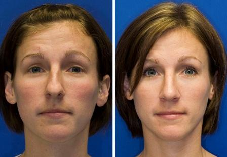Bulbous Nose Tip - Before and After Rhinoplasty