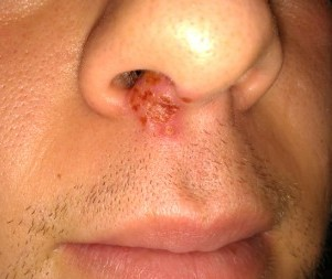Cold Sores in Nose – Causes, Pictures, Treatment and Home Remedies- 1