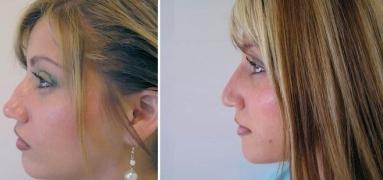Nose Piercing Pustule