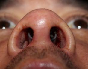 Nose Pain – On Nose Bridge, Inside Broken Nose Pain (2)