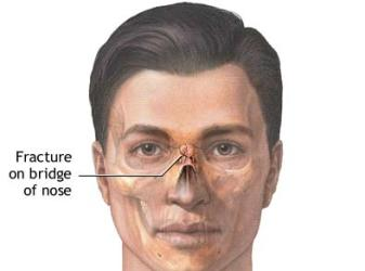 Nose Pain – On Nose Bridge, Inside Broken Nose Pain - Fracture on Nose Bridge
