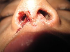 Scab in Nose Causes, Bloody, Painful Scabs in Nose that Won't Go