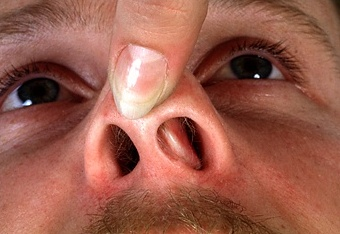 Swollen Nasal Passages Causes Allergies Treatments Medicine No Mucus