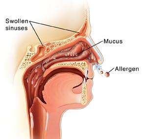 Midsagittal view of sinuses with nasal allergies