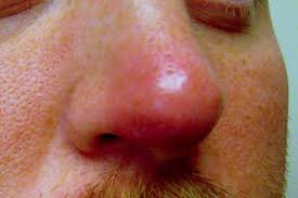 Swollen Nose – Causes, Red, On Bridge, Nose Tip and During Pregnancy - REd