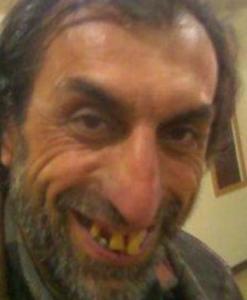 You like my nose or… teeth