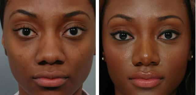 African American Nose surgery