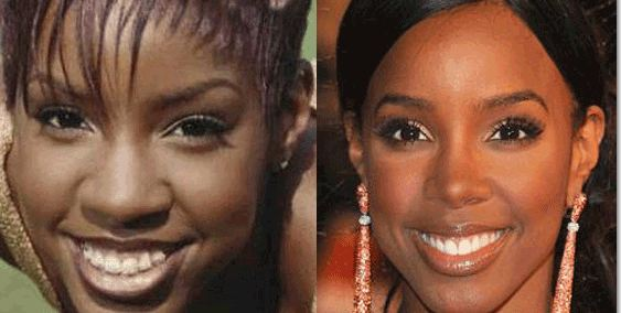 Kelly Rowland - African American nose job