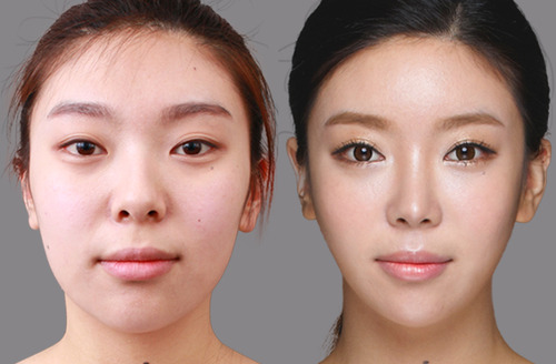 African American Nose Job, Black and Korean Nose Job Korean Nose Job