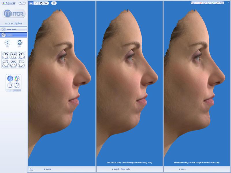 Virtual Nose Surgery
