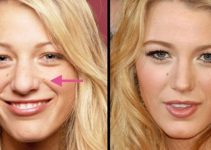 What Is a Nose Job - Blake Lively
