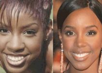 African American Rhinoplasty Before and After - Kelly