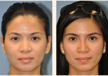 Asian Rhinoplasty with Defined Tip - Before and After