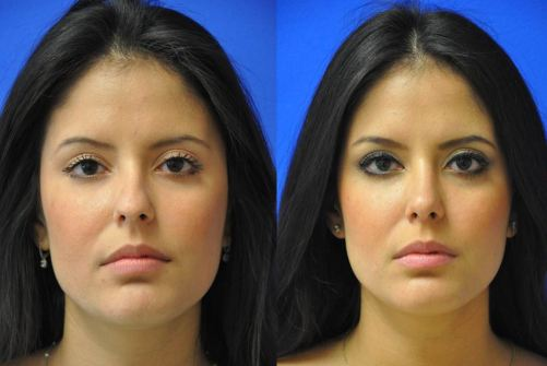 Ethnic Rhinoplasty - Hispanic