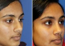 Ethnic Rhinoplasty - Indian Rhinoplasty