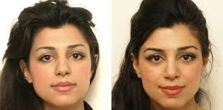 Ethnic Rhinoplasty - Middle Eastern