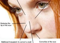 Nose Rhinoplasty Procedure