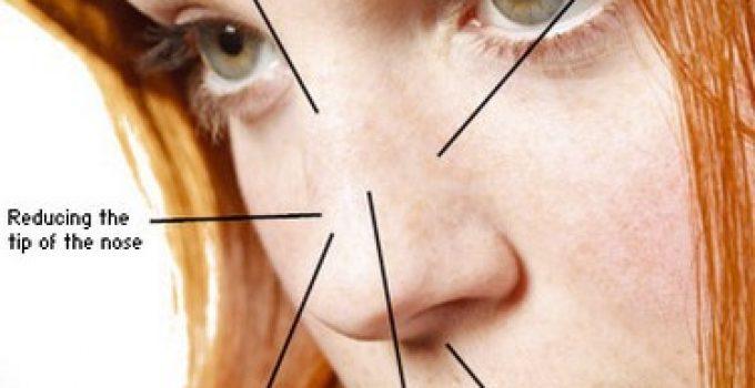 Nose Rhinoplasty Procedure