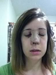 Rhinoplasty Recovery – Timeline, Revision, Photos and Tips Rhinoplasty Recovery Day 2