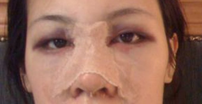 Rhinoplasty Recovery – Timeline, Revision, Photos and Tips