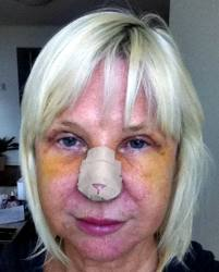 Rhinoplasty Recovery – Timeline, Revision, Photos and Tips - Rhinoplasty Recovery Day 7