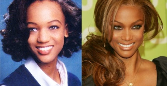 Tyra Banks Nose Job Before and After Photo