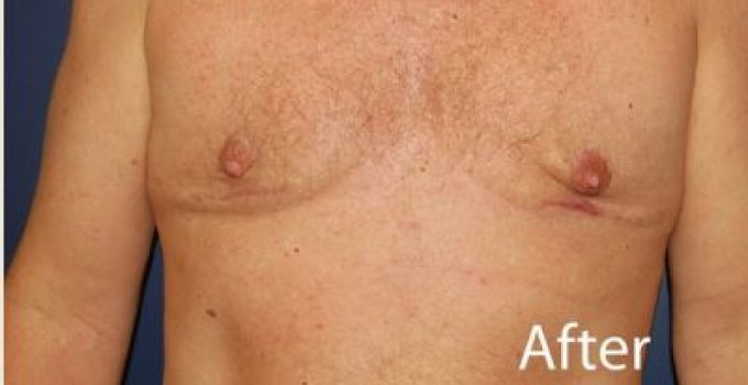 Breast scar reduction