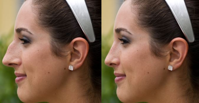 Broken Nose Surgery - Before and After Surgery Photos, Images or Pics