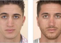 Nose Surgery – Costs, Recovery, Before and After Pictures