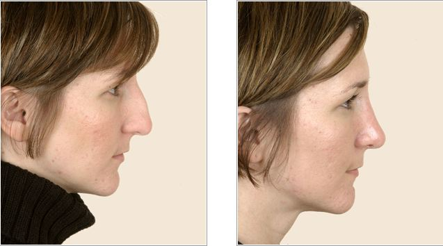 Nose Surgery – Costs, Recovery, Before and After Pictures & Reduction Plastic Surgery for the Nose