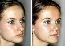 Nose Surgery Types, MOHs, Crooked Nose, Wide