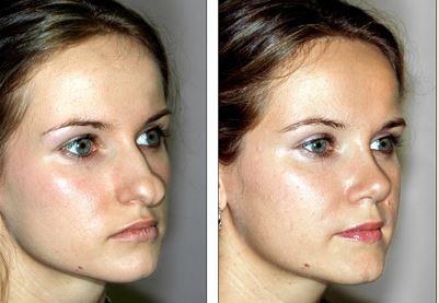 Nose Surgery Types, MOHS, Broken, Korean, Tip, Pug, Wide